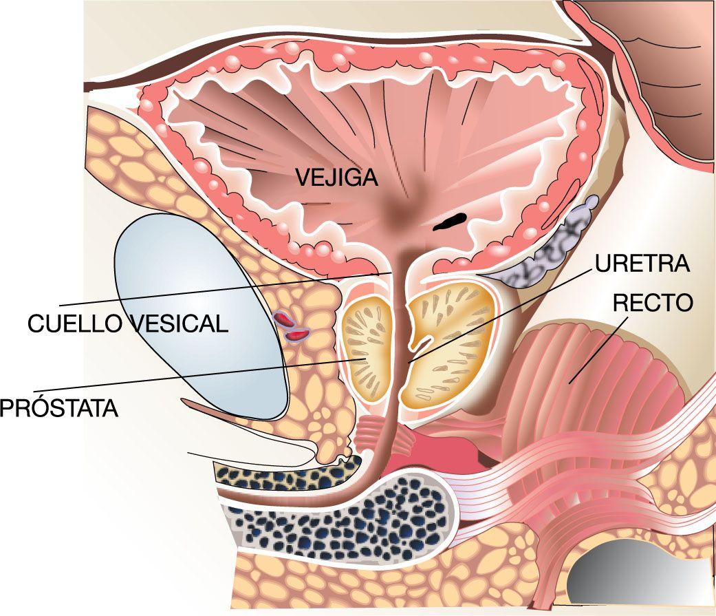 Acerca de la Próstata y sus Enfermedades | Centro Gil-Vernet de Urología