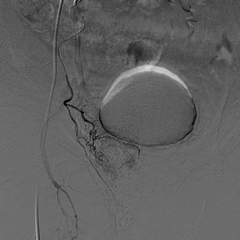 Flujo sanguíneo arterial (lóbulo d. prostático) Dr Gil-Vernet