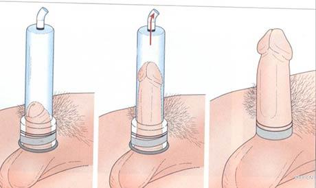 disfuncion erectil fig F dr gilvernet tratamiento de vacío