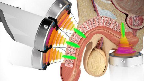 tratamiento no invasivo mediante ondas de choque de baja intensidad