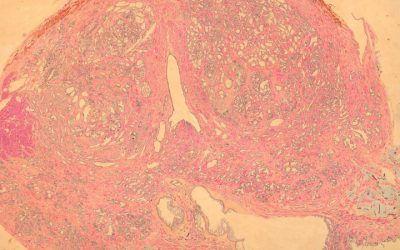 Biopsias de próstata y complicaciones infecciosas